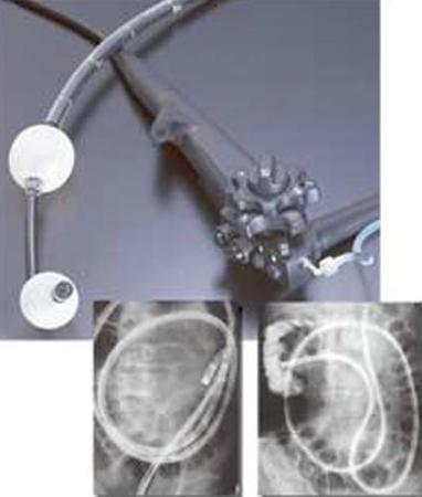 Двухбаллонная энтероскопическая система DBE Fujinon